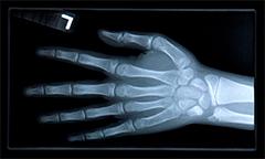 骨の量はどのくらい減ったら危険なのでしょうか